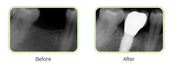 Local Implants Fort Lauderdale - Dr. Yolanda Cintron For Best Results